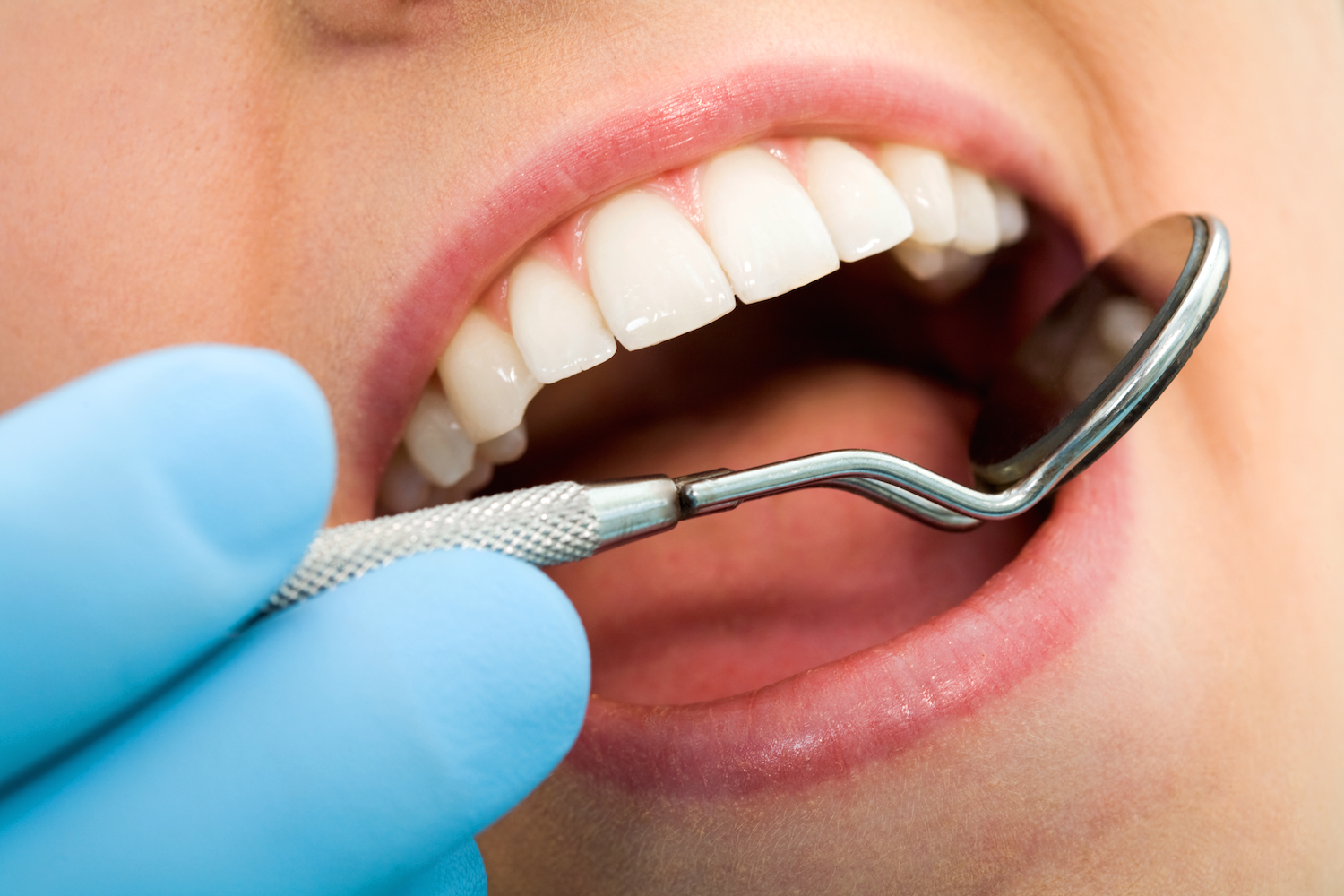 what is plaque dentist in Littleton CO